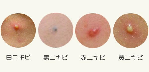 「鼻ニキビの種類」の画像検索結果