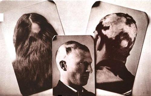 円形脱毛症の原因は、ストレスだけではなかった!?〝10円ハゲの原因と対策方法〟