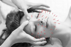 美容鍼の効果-美容男子