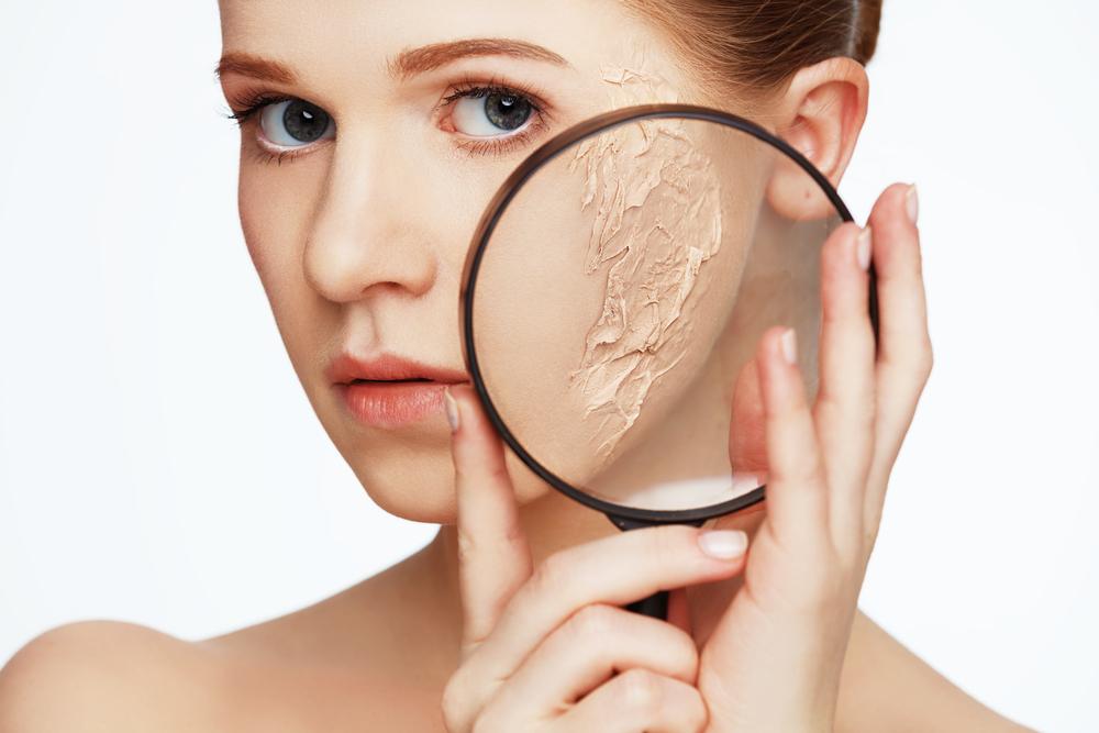 肌の乾燥によって出来る大人ニキビのメカニズム