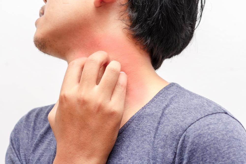 ストレスが原因で起こる肌荒れの理由