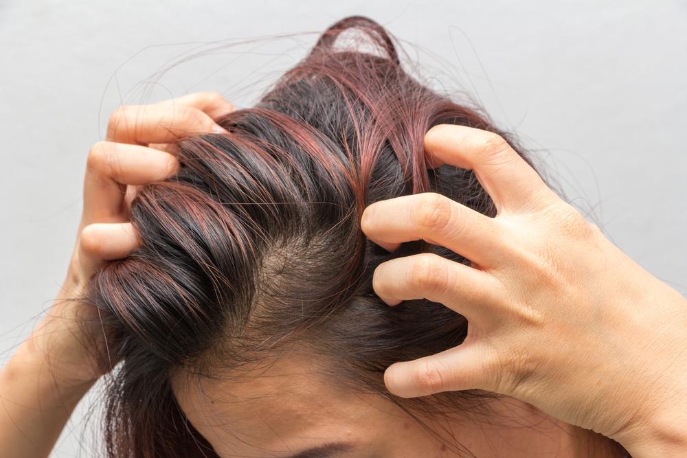 セルフ頭皮マッサージする時の注意事項