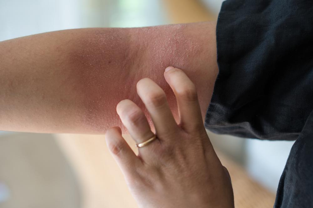 ストレスによる肌荒れの原因は乾燥