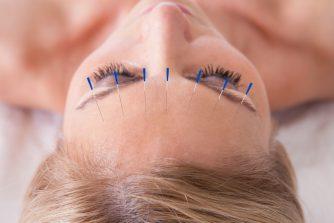 美容鍼の知っておくべきリスク