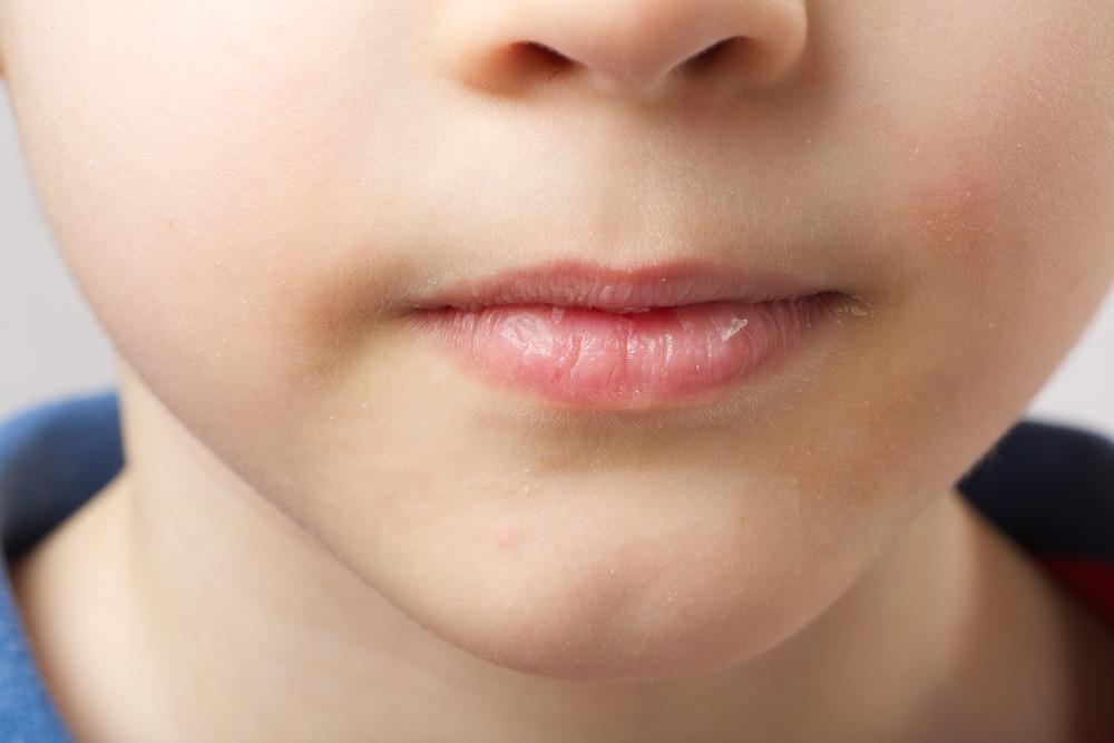 唇は乾燥しやすく荒れやすい場所