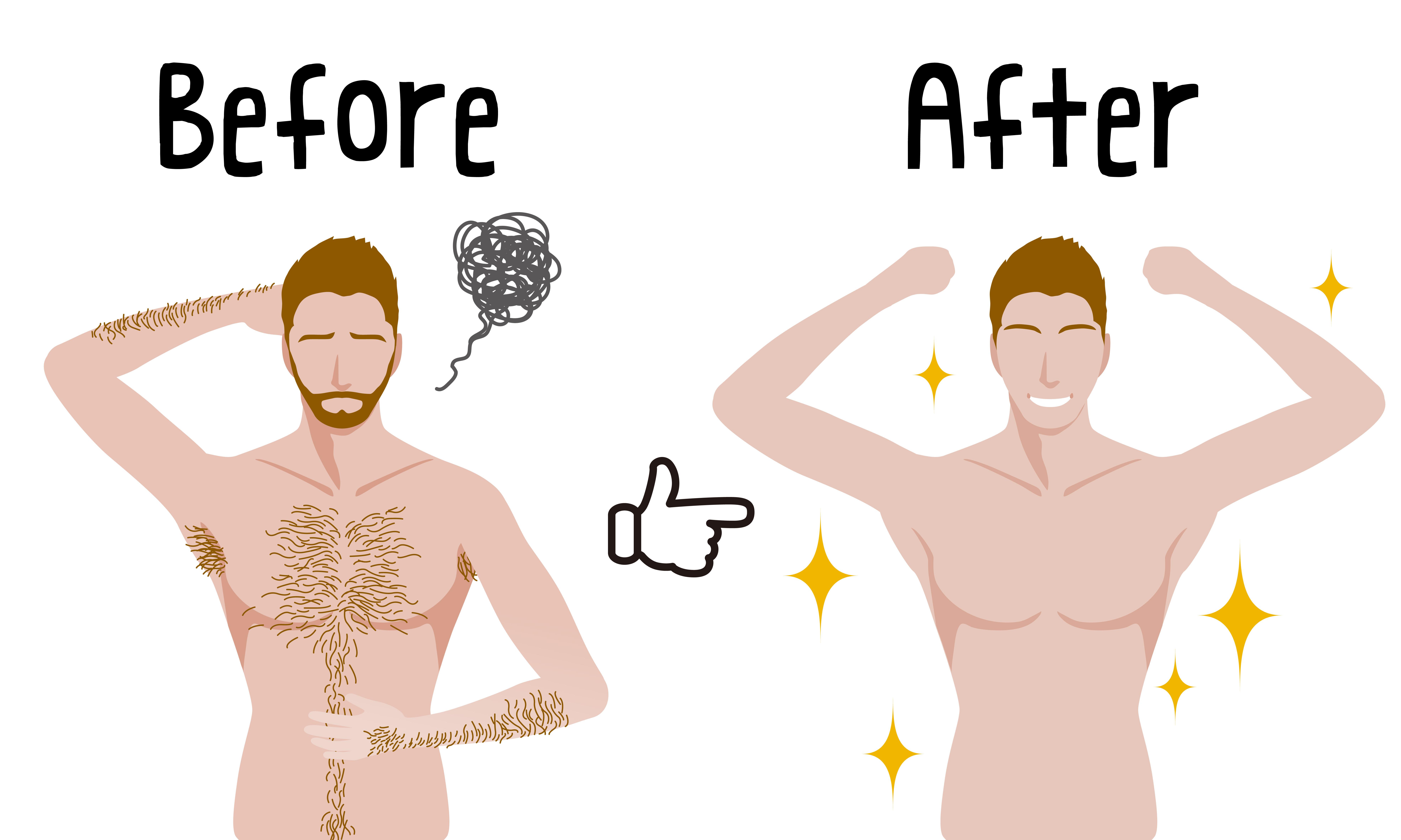 男性の脱毛方法