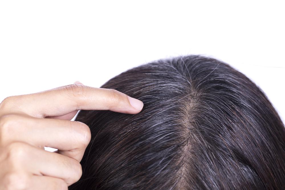 白髪の特効薬がついにできる?