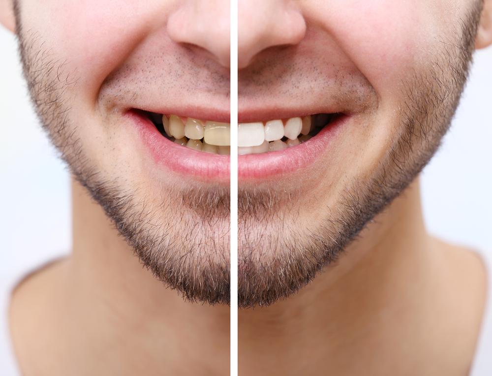 市販のホワイトニングで自宅だけでも白い歯に!美容男子おすすめ5選!