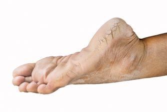 その足の臭い、もしかして角質かも!角質が臭う原因とは?