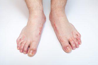 足の臭いは水虫で強烈になる!? 水虫and臭いの関係性