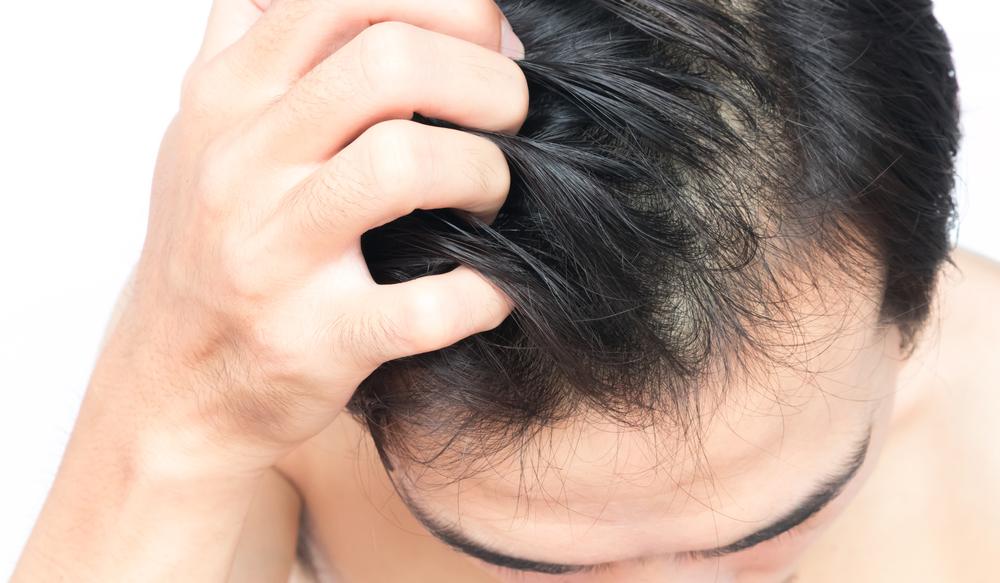 頭皮のかゆみトラブル、放置は危険!原因ケア方法で対策を!
