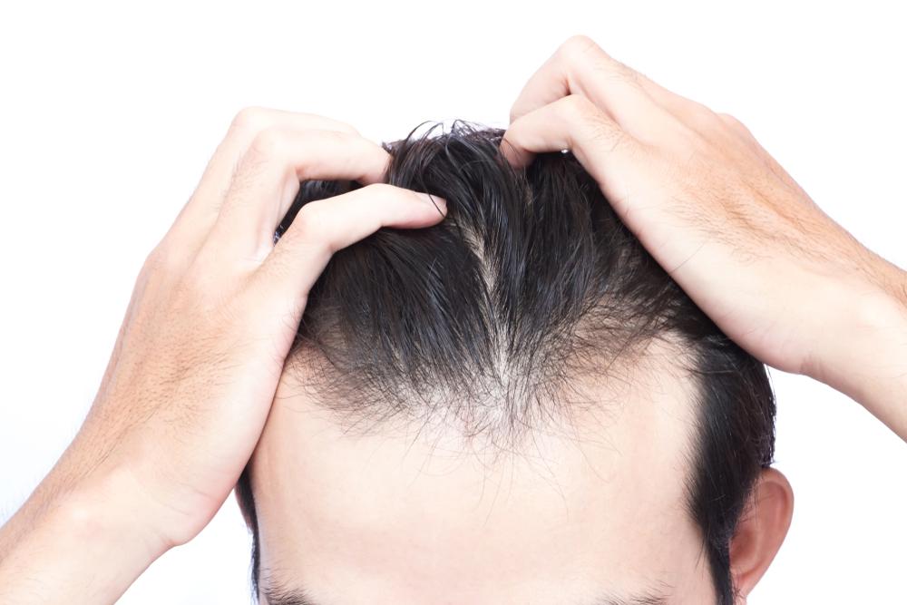 その抜け毛、もしかしてストレスのせい?症状や対策をわかりやすく解説