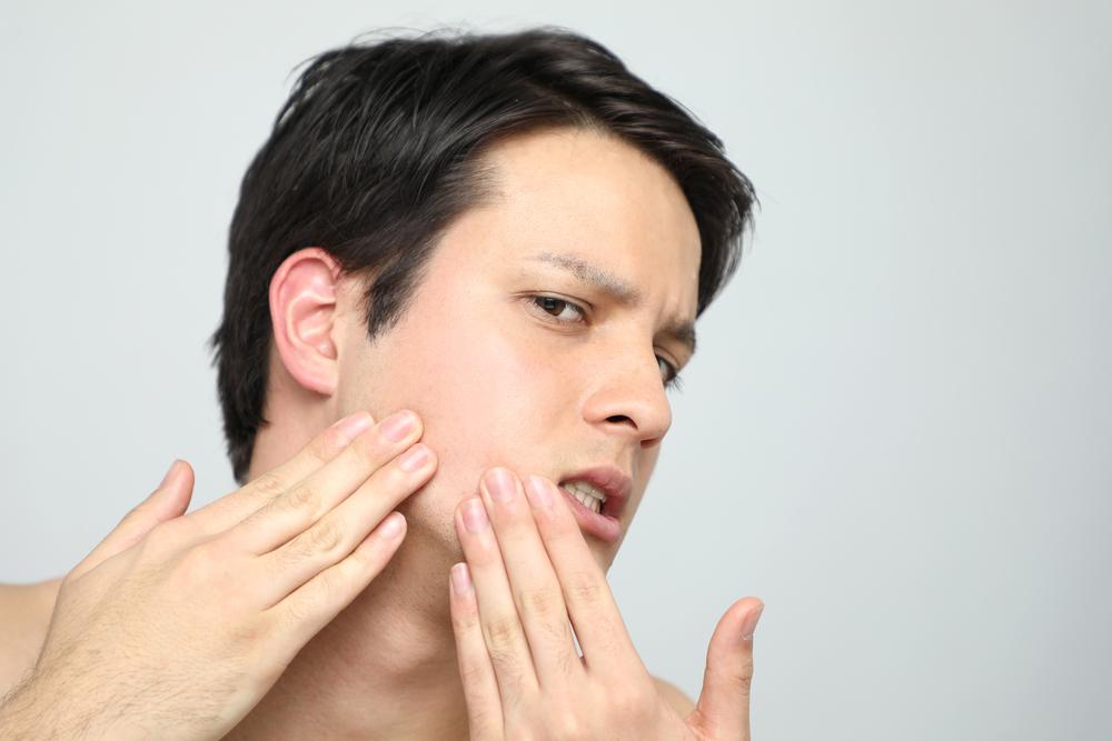白ニキビの原因と治し方。触ったり潰すのはNGです!