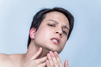髭を脱毛するとニキビができやすくなる?髭脱毛に関する疑問を徹底検証!