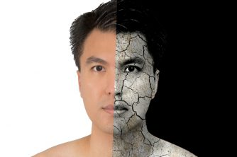 ◎ 大人ニキビは乾燥や過剰な皮脂の分泌