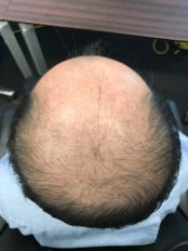 高額な育毛・発毛サロンに通う必要はあるの?髪が抜けたらあなたはまずにどこ行きますか?