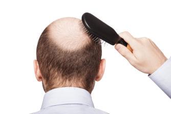 てっぺんやつむじ、後頭部がやばい人必見!ハゲを隠す髪型で伸ばすのはNG!