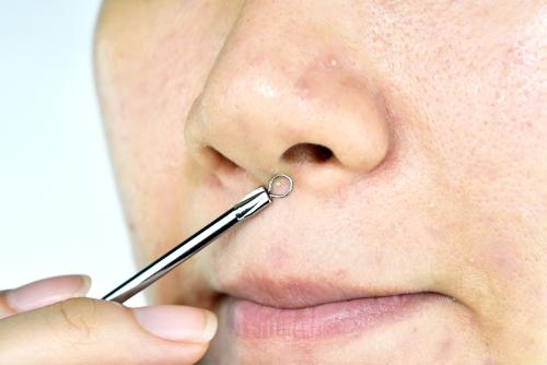 鼻の下ニキビの原因と意味。それは心と身体のサイン!? 〜ニキビ占いのおまけ付き〜