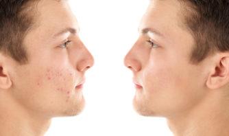 男もニキビ対策には化粧水が必要!その理由と選び方とは?