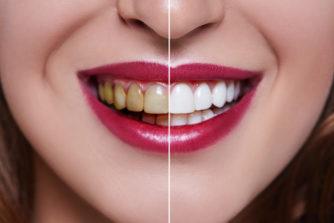 美男美女は歯がきれい!芸能人や経営者の歯はなぜ白い?黄ばみの原因を徹底解説!