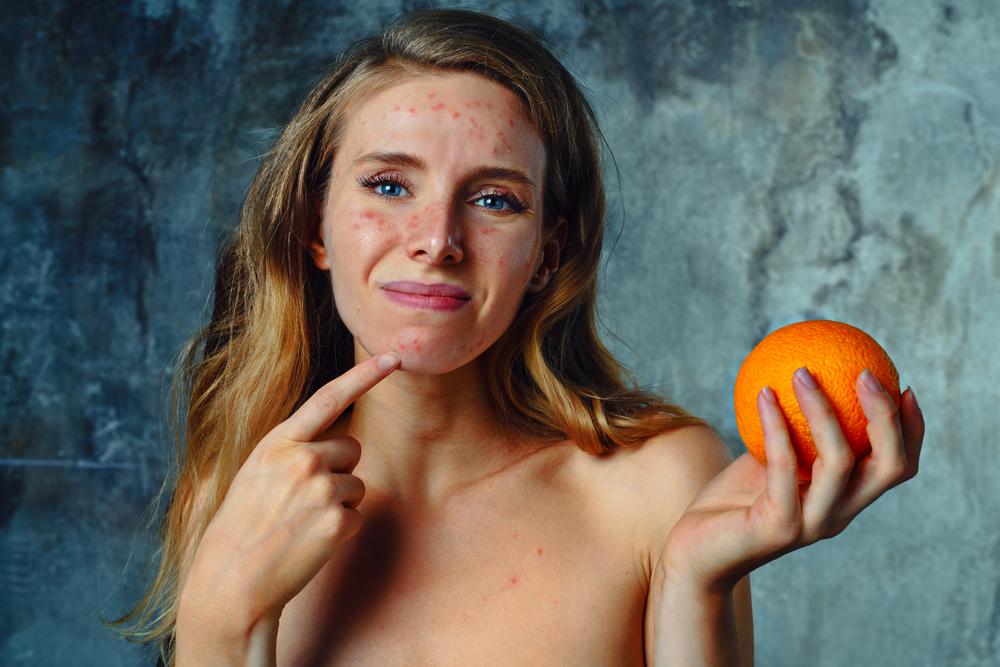 ダイエットが原因で吹き出物ができる!? 間違った食事制限は肌荒れやニキビの原因に!