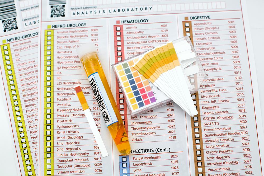 【尿の色で分かる病気のサインまとめ】見逃してはいけない危険信号を要チェック!