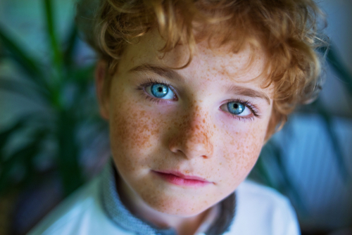 「遺伝」だからあきらめた方が良い?〝そばかす〟の原因や治療&予防法を徹底解説!