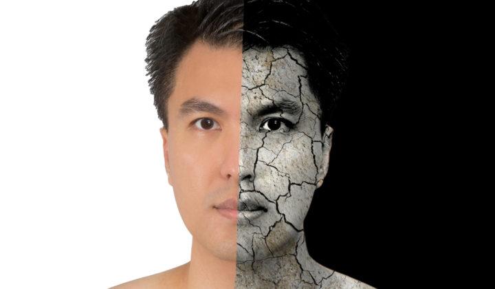 """乾燥肌の原因と対策を知って、ニキビや""""かゆみ""""を改善しよう!"""
